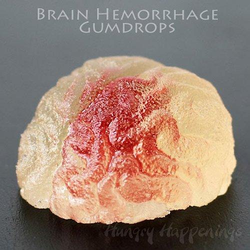 Brain Hemorrhage Gumdrops